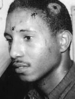 SNCC's Bernard Lafayette after Selma beating, 1963