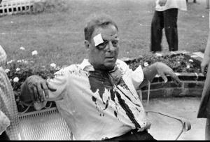 Rabbi Arthur Lelyveld after beating:  Hattiesburg 1964